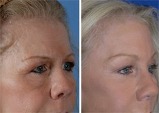 Brow Lift Patient Before and After in Beverly Hills