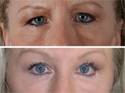 Blepharoplasty Patient Before and After in Beverly Hills