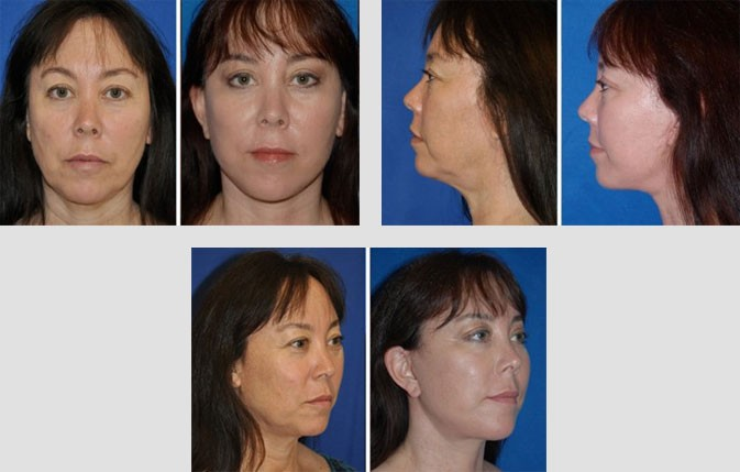 Facelift Before After Patient Images in Beverly Hills