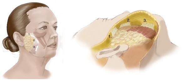 SMAS Facelift Technique of Dr. Ashkan Ghavami Beverly Hills
