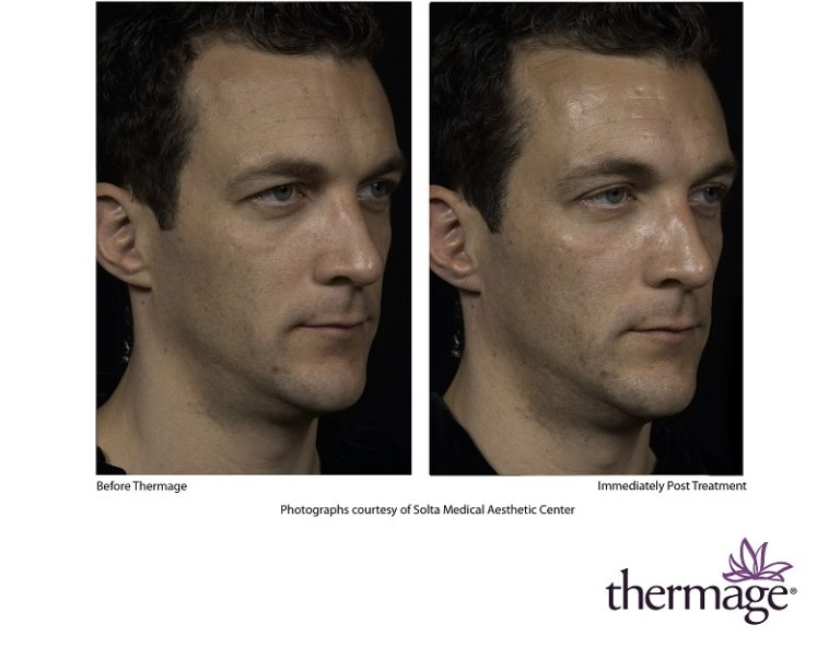 Thermage Facial Skin Tightening Patient