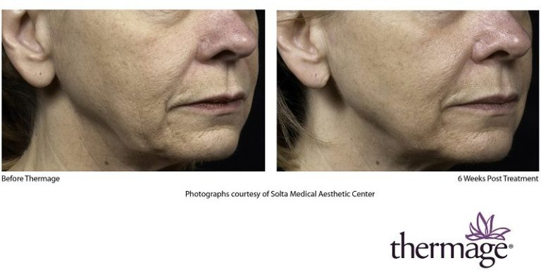 Thermage Patient - Wrinkle Reduction