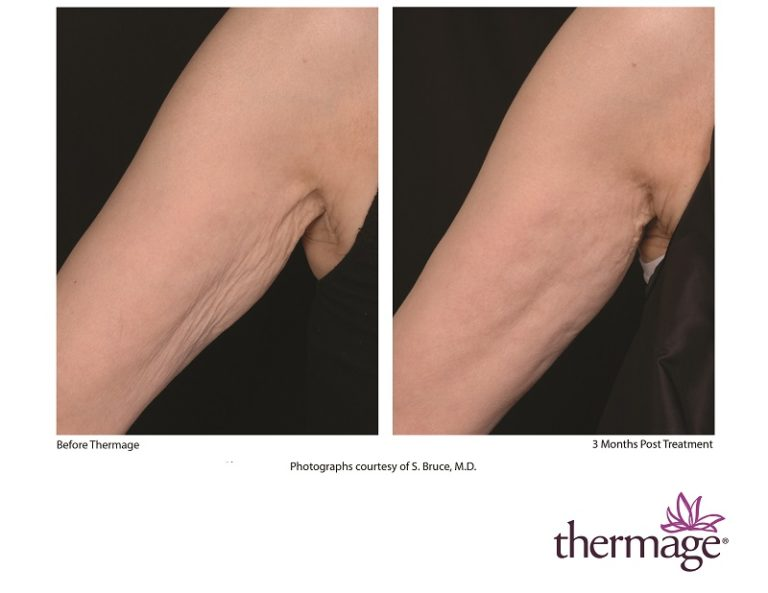 Thermage Arm Skin Tightening Patient