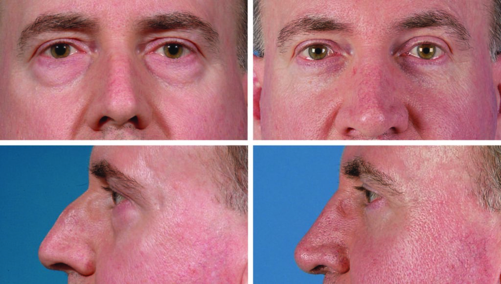 Blepharoplasty Patient Before & After Photos