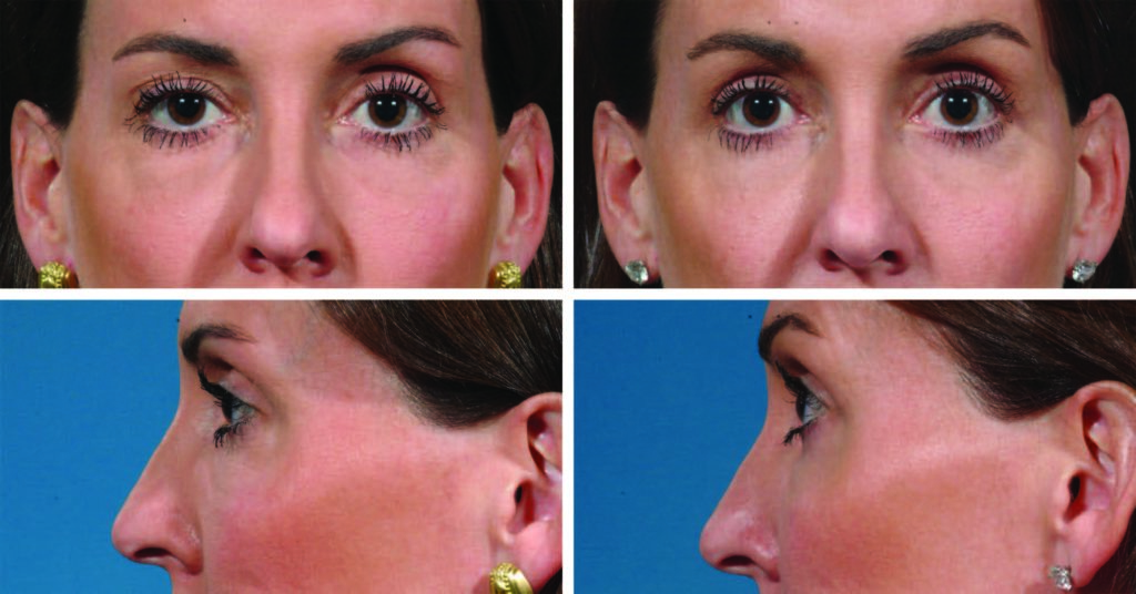 Eyelid Surgery Results Patient Photos