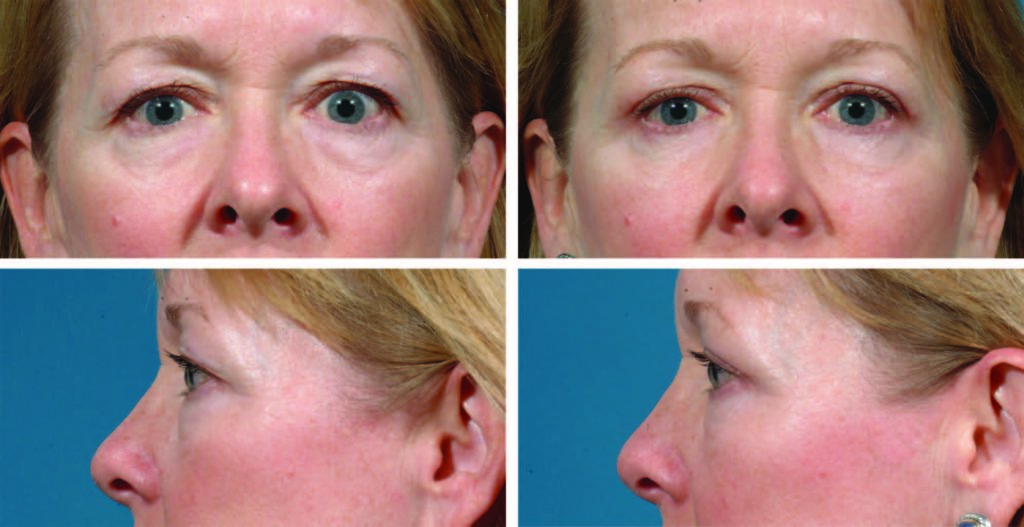 43-year-old woman before & After eyelid surgery photos