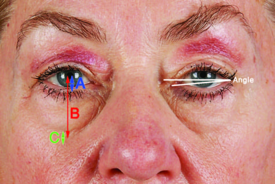 typical aesthetic outcomes of blepharoplasty