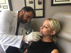 Dermal Filler Patient in Beverly Hills