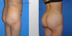 Butt Augmentation Before & After Photos