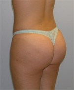 Buttock Cellulite Removal Patient