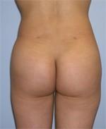 Patient Butt Augmentation After Surgery