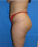 (from the side) After Butt Augmentation Surgery