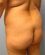 Butt Patient Before image