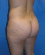Patient with Cellulite in the Buttocks