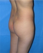 Buttock Patient Before Augmentation in Beverly Hills