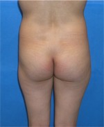 Patient Butt Augmentation Before Surgery