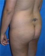 Buttock Augmentation Case 4 (before)
