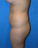 (from the side) Before Butt Augmentation Surgery