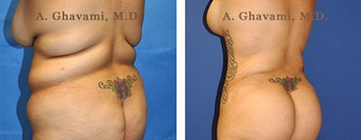 Patient Before & After Photos of S-Curve Surgery