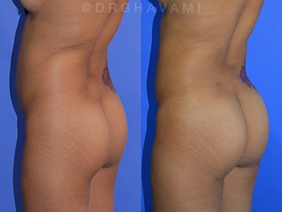 Results of Buttock Augmentation