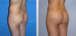 Butt Augmentation Patient Photos