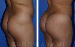 Butt augmentation patient in Beverly Hills
