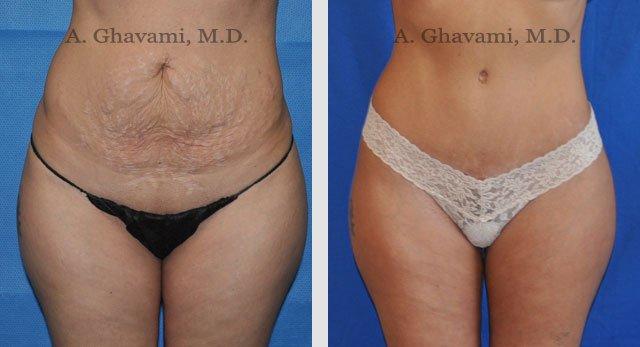Tummy Tuck Patient Photos