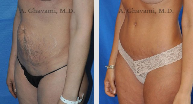 Abdominoplasty Patient Before & After Photos