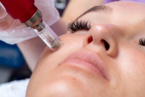 Facial Rejuvenation Treatments in Beverly Hills