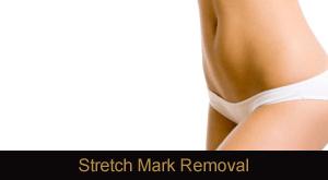 Laser Stretch Mark Removal Novi & Troy Michigan