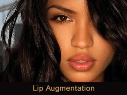 Lip injections Novi & Troy, Michigan