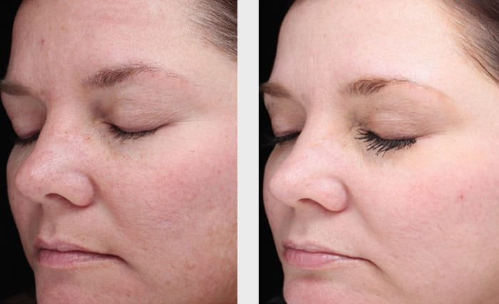 Halo Laser Treatment Patient in Charlotte, NC