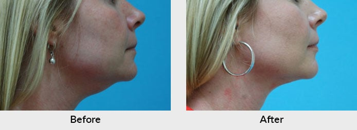 Thermi Skin Tightening Charlotte, NC