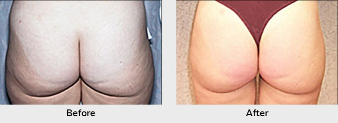 Liposuction Before After Photo in Charlotte, NC