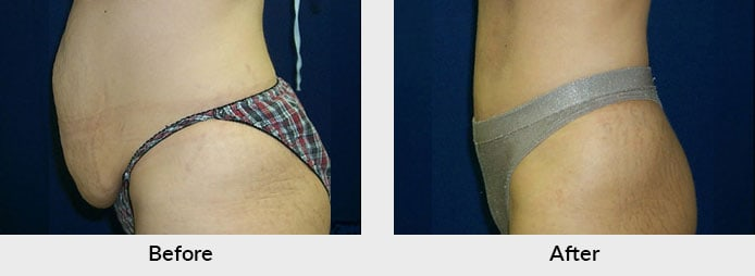 Abdominoplasty Before After Photo in Charlotte, NC