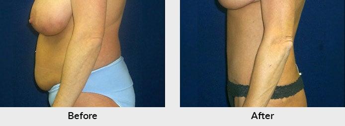 Abdominoplasty in Charlotte, NC