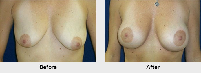 Mastopexy Patient in Charlotte, NC