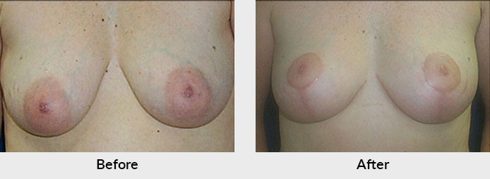 Breast Lift in Charlotte, NC
