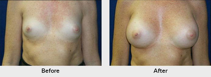 Breast Implant Before After Photos Charlotte, NC