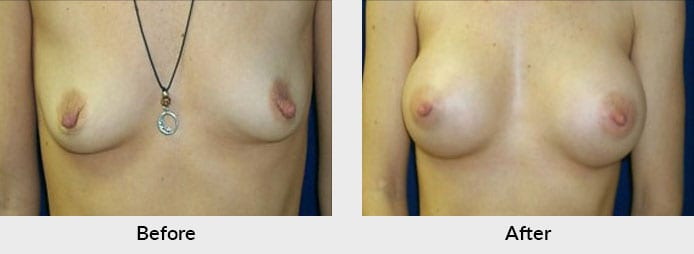 Breast Augmentation Charlotte, NC