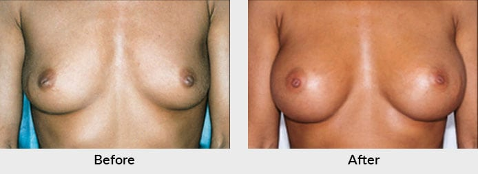 Breast Augmentation Patient Charlotte, NC