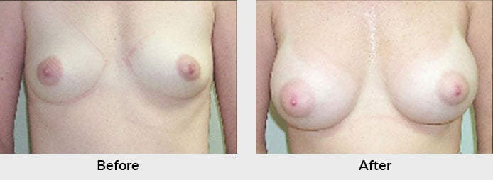 Breast Implant Patient Charlotte, NC