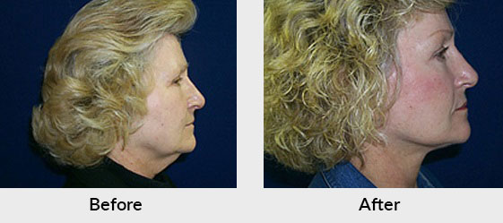 Facelift Patient in Charlotte, NC
