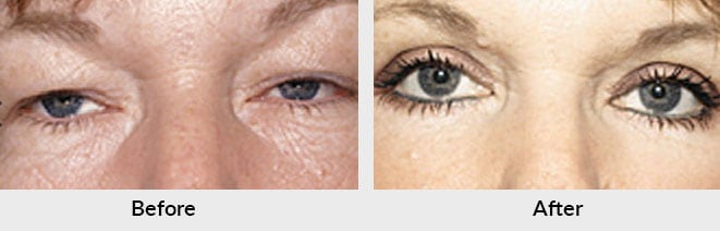 Eyelid Surgery Patient in Charlotte, NC