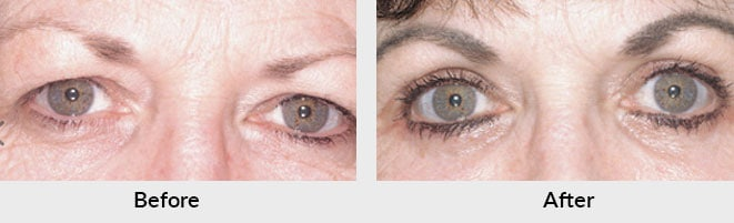 Eyelid Surgery Before After Photos in Charlotte, NC