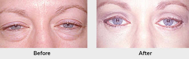 Blepharoplasty Patient in Charlotte, NC
