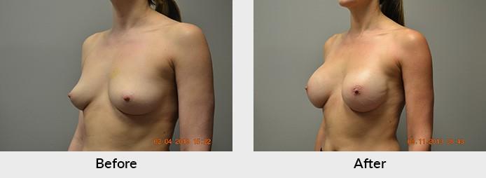 Breast Reconstruction Patient Charlotte NC