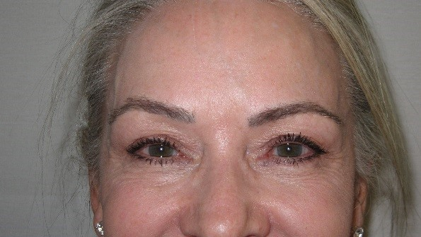 microblading Patient charlotte NC