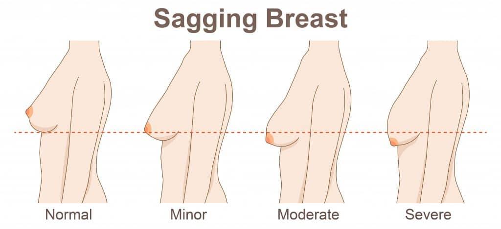 Breast lift in Sacramento