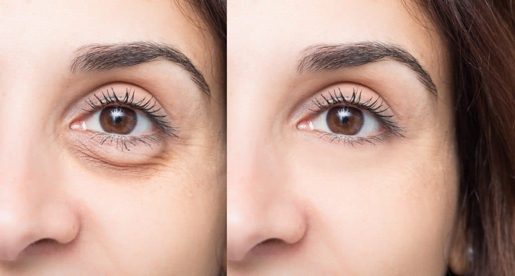 Eyelid surgery in Sacramento